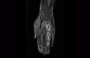 Hand/Wrist with tumor
