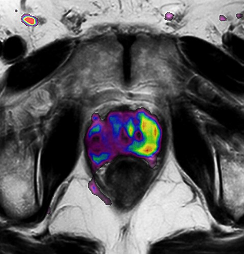 Functional imaging