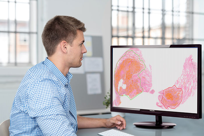 Download image (.jpg) Philips IntelliSite Pathology Solution
