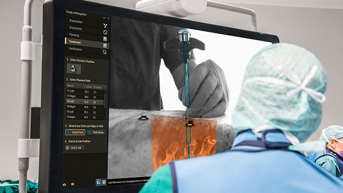 Philips Surgical Navigation Technology based on Augmented-Reality